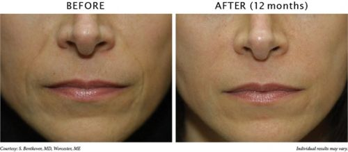 ácido hialurônico resultados antes e depois