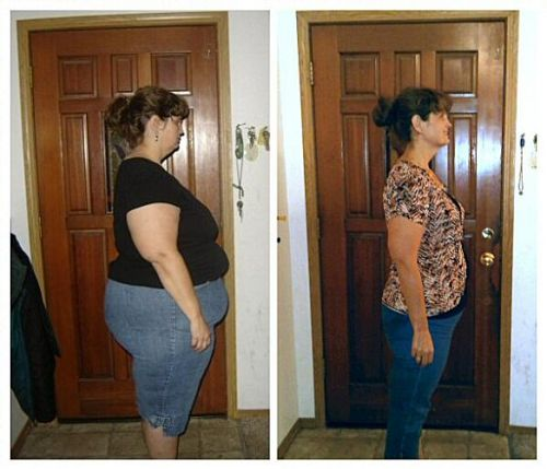 lipblock antes e depois