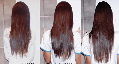 pantogar antes e depois