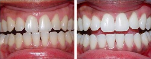 clareamento dental a laser como é feito