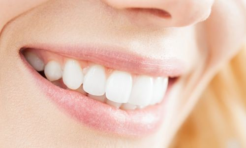 clareamento dental a laser destaque