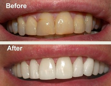 clareamento dental a laser efeitos colaterais