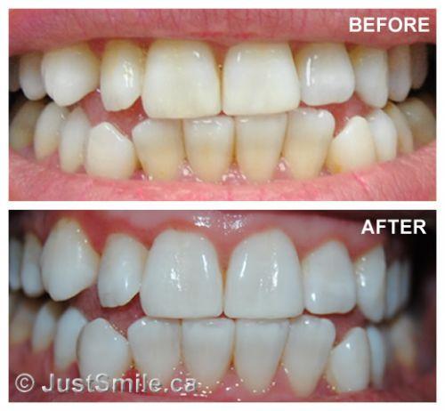 Clareamento Dental A Laser Como E Feito Saiba Tudo