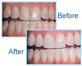 clareamento dental a laser passo a passo