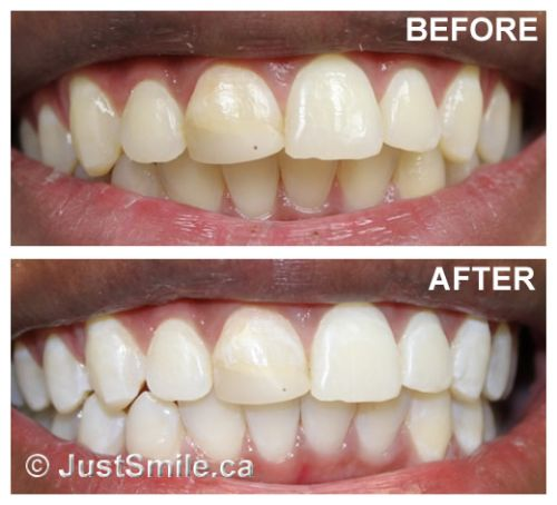 clareamento dental a laser profissional