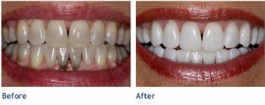 clareamento dental a laser resultados antes e depois