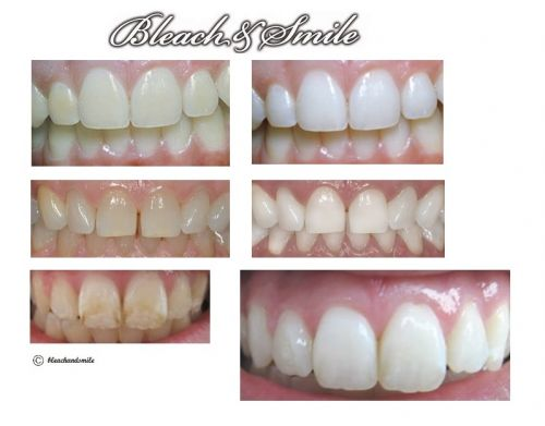 clareamento dental a laser resultados