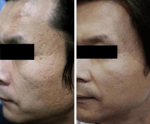 subcisão acne