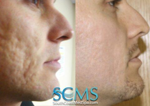 subcisão para sinais de acne